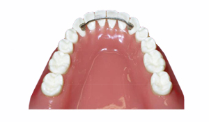 Bonded-(Fixed)-Retainer