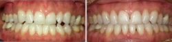 Edge to Edge Bite, Missing Tooth, Midline Discrepancy