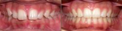 Deep Bite with Palatal Impingement