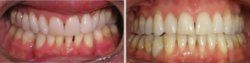Arch Collapse Due to Multiple Missing Teeth