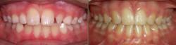 Impaction & Multiple Missing Teeth