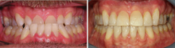 Surgical Orthodontic Correction of an Underbite